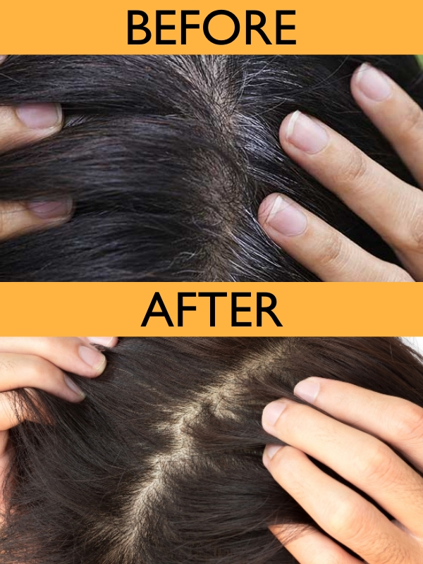 Lavender Oil Grey Hair